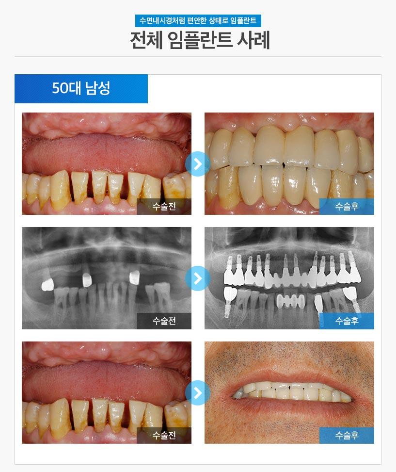 분당임플란트 - 전체임플란트 후기/사례 1 : 50대 남성