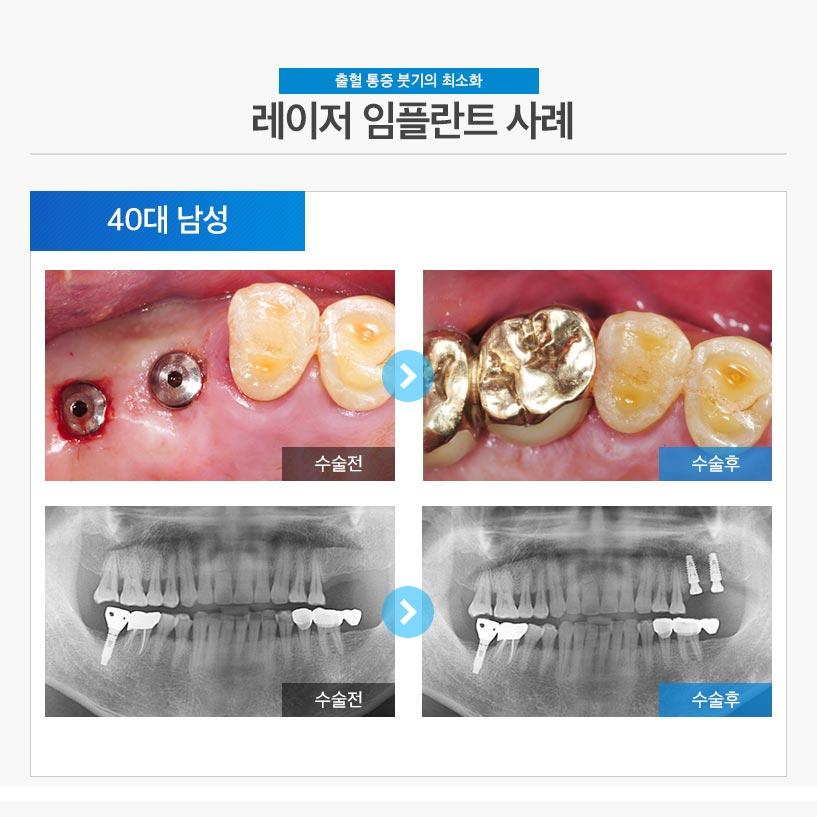 분당임플란트 - 레이저 임플란트 후기/사례 1 : 40대 남성