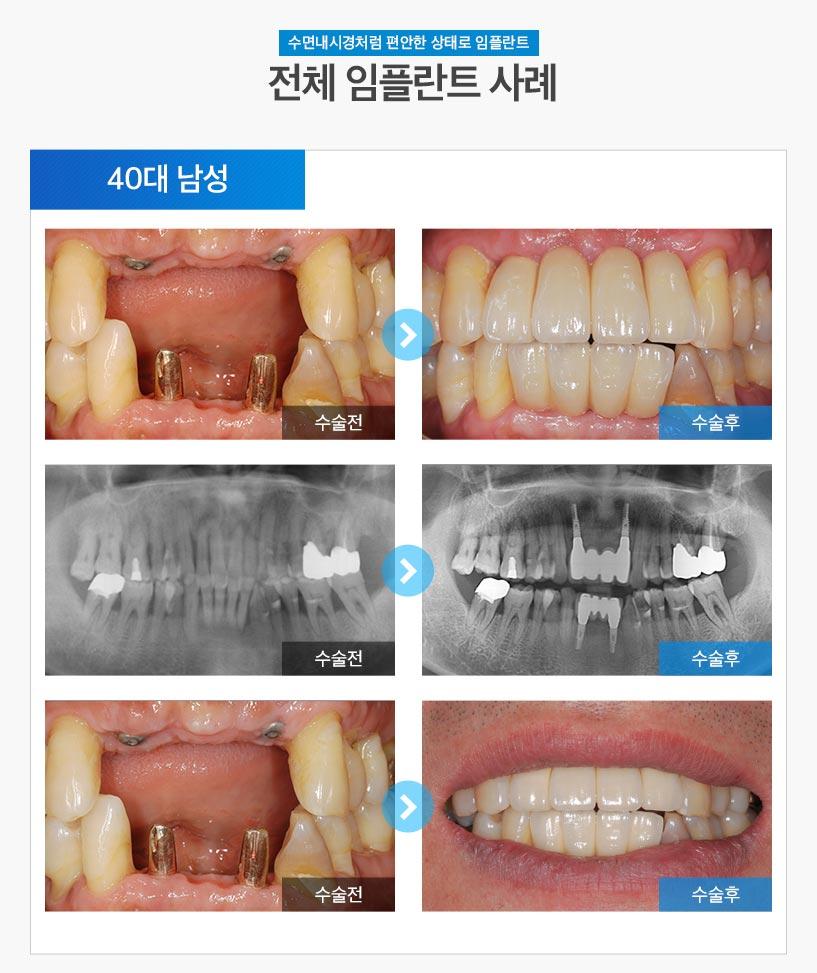 분당임플란트 - 전체임플란트 후기/사례 2 : 40대 남성