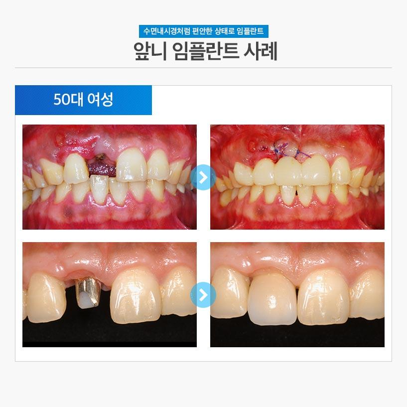 분당임플란트 - 앞니임플란트 후기/사례 2 : 50대 여성