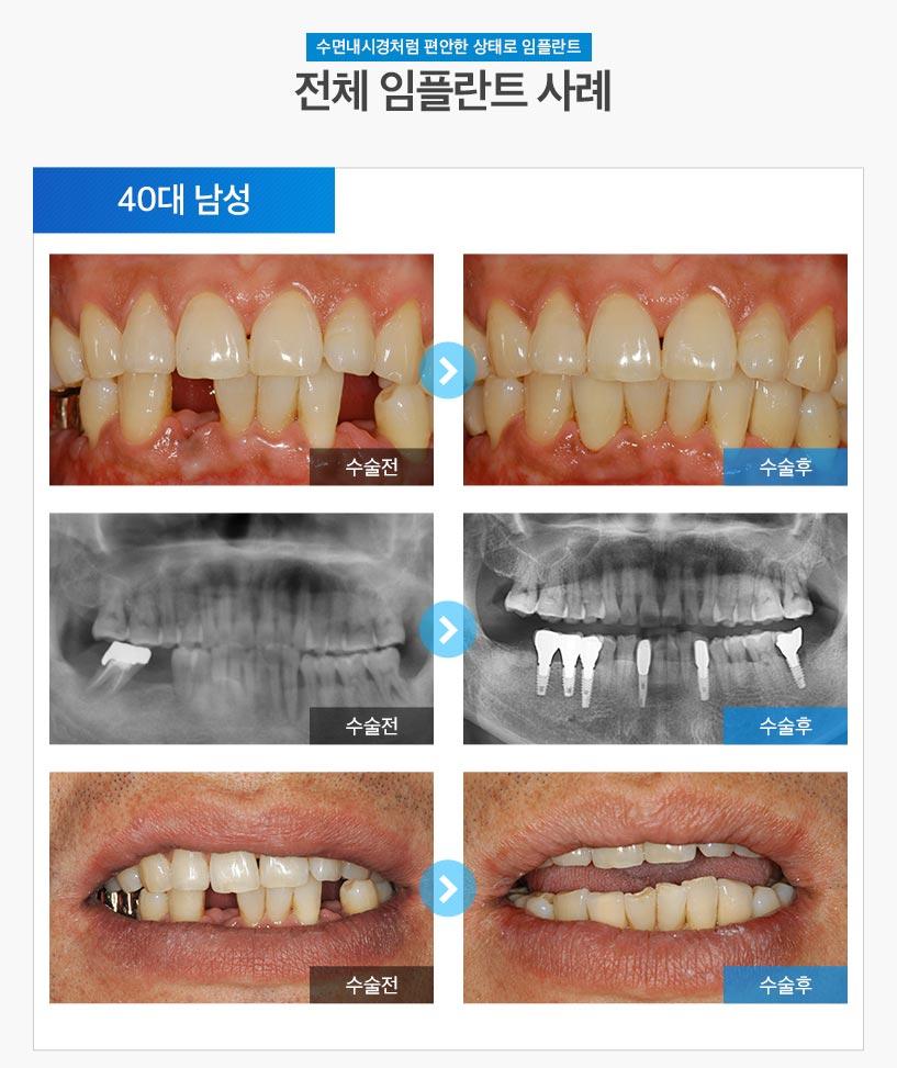 분당임플란트 - 전체임플란트 후기/사례 3 : 40대 남성
