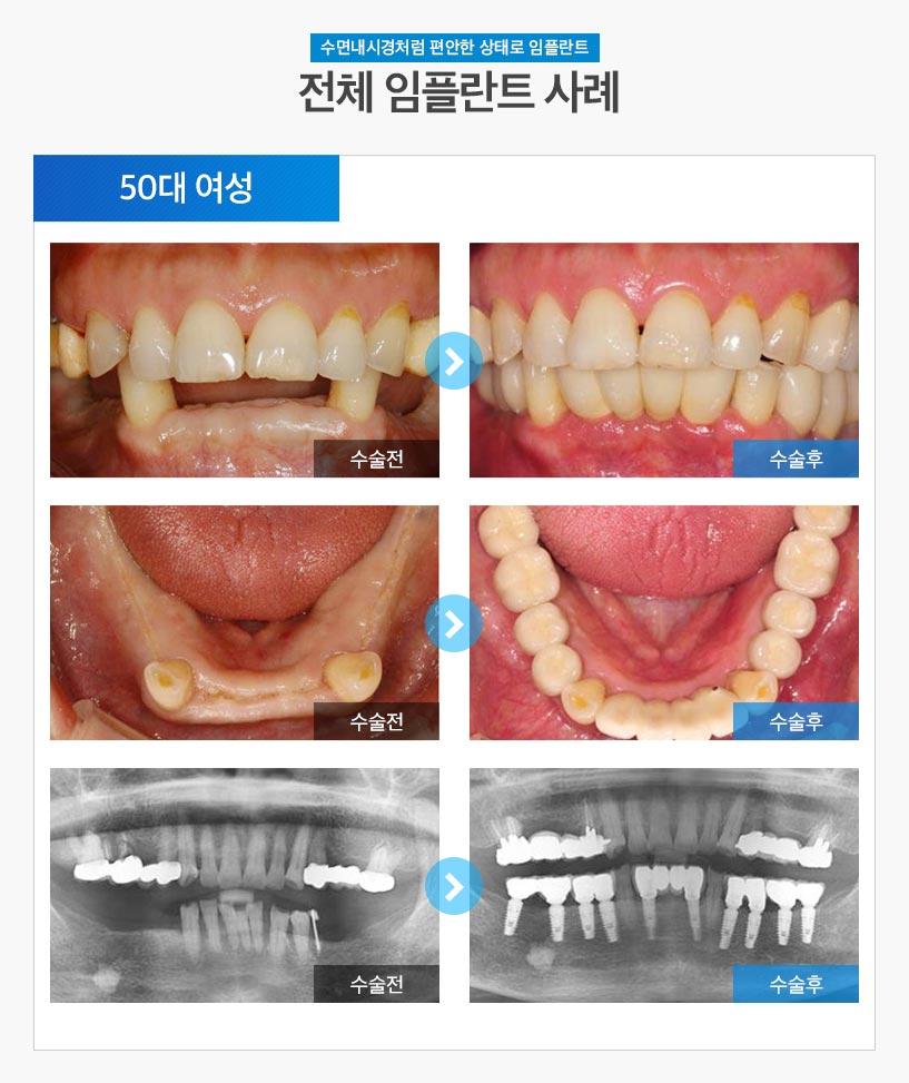 분당임플란트 - 전체임플란트 후기/사례 4 : 50대 여성