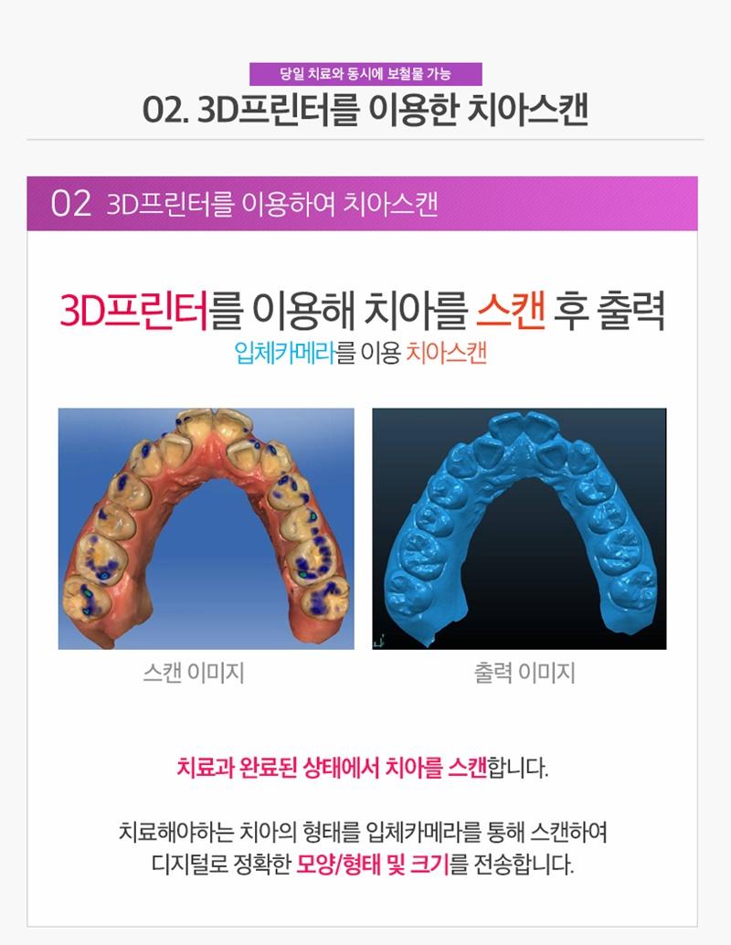 수면마취치과/원데이치과 - 원데이치료과정 : 02. 치아스캔